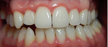 Dental infections Gingivitis